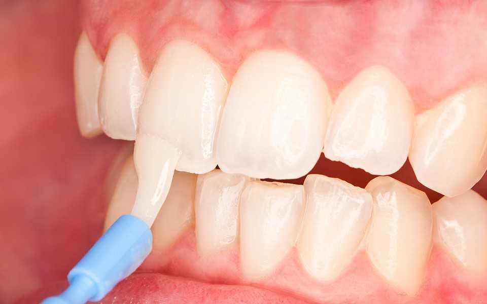 Как помогает серебрение молочных зубов